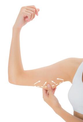 Frau zeigt den Oberarm
